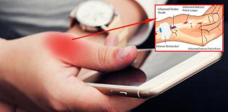 मोबाईल मुळे होणारे अंगठा मनगट आणि कोपर यांचे दुखणे