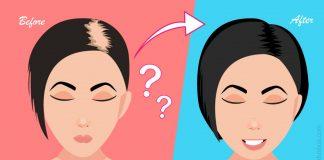 केसांची मुळे बळकट करण्याचे आयुर्वेदिक उपाय