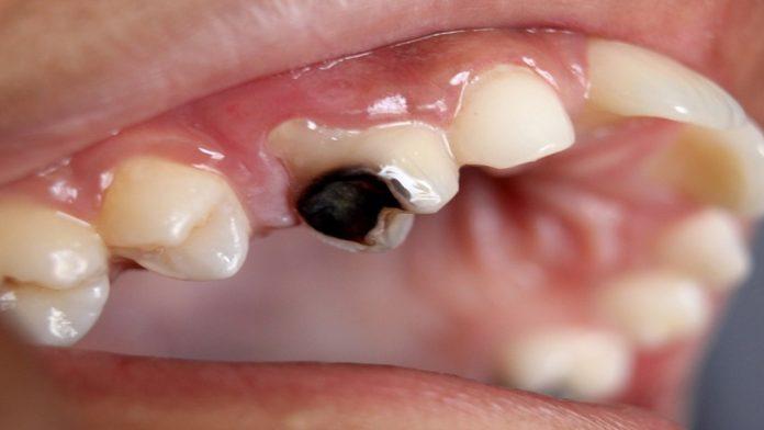 दातांचे किडणे थांबवण्यासाठी हे करा