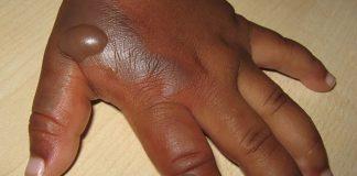 home-remedies-on-skin-burn